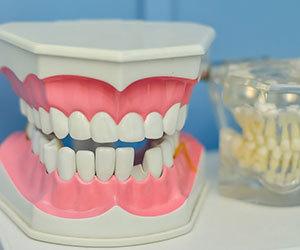 口腔がん-初期症状-口内炎-病気-原因-画像.jpg