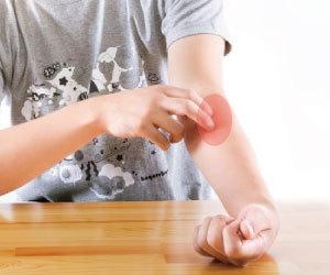 アトピー性皮膚炎-原因-症状-皮膚-保湿-顔-首-肘の内側-膝の裏側-湿疹-腕痒み画像.jpg