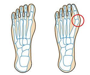 足の指が痛い 親指 人差し指 中指 薬指 小指 腫れ 付け根が痛い原因 外反母趾画像.jpg